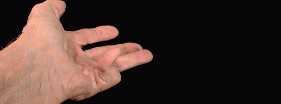 Enfermedad de Dupuytren: rigidez y pérdidad de flexibilidad en los dedos: mano con el dedo meñique encogido