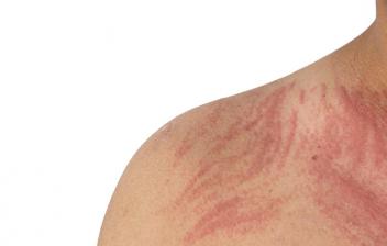 Dermografismo: piel de varón con dermografismo