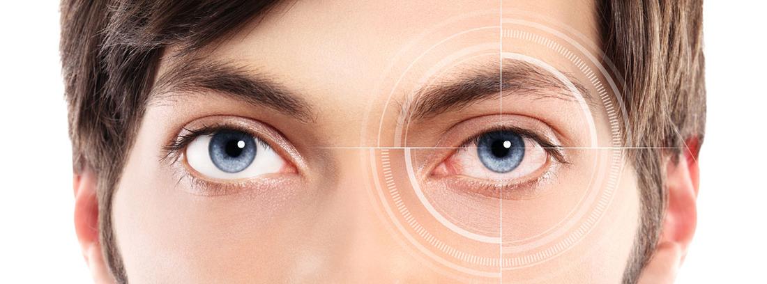 ¿Qué es la fotoqueratis y por qué se produce? jóven de ojos azules con lesión en uno de ellos