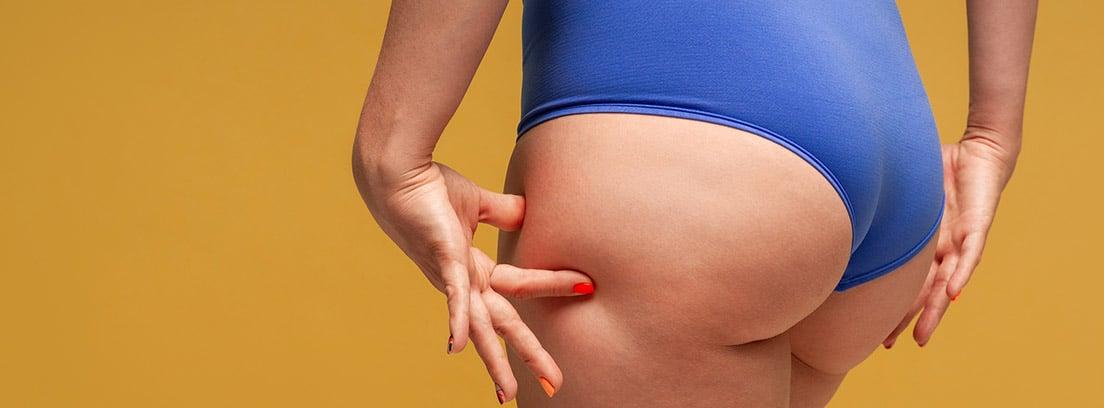 ¿Qué es el lipedema? mujer apretándose los muslos