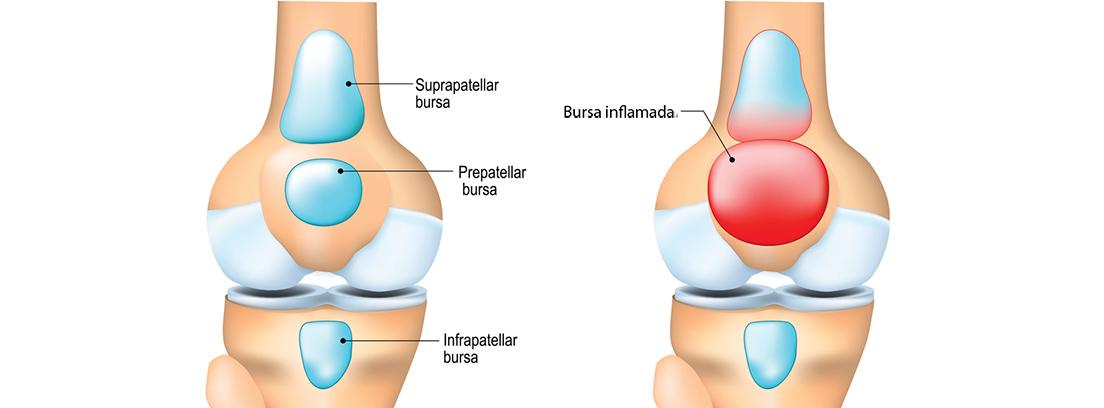 Bursitis de rodilla: esquema de bursitis de rodilla