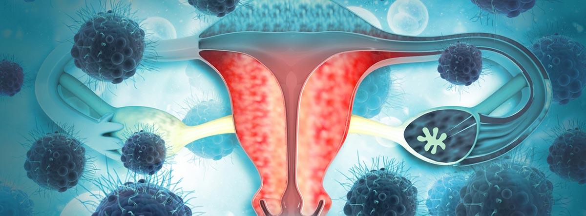 imagen utero mujer