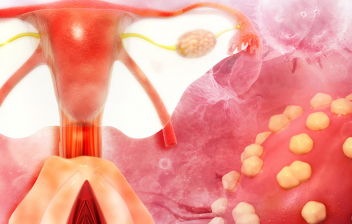 cancer utero mujer