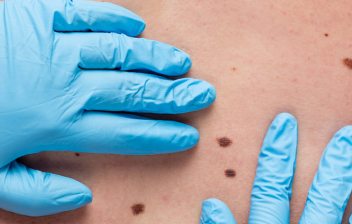 Autoexaminarse la piel para prevenir el cáncer : médico examinando manchas en la piel