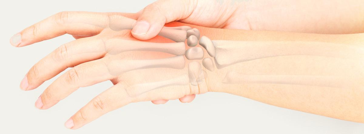 Fórmula de Tunner: huesos de la mano y la muñeca