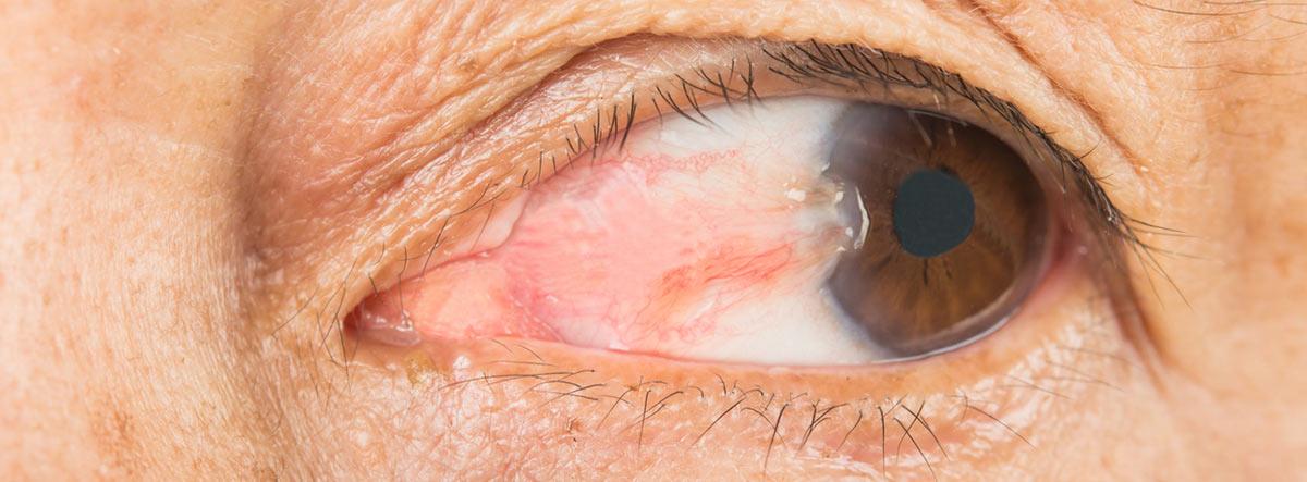 Pterigión en el ojo: ojo con pterigión