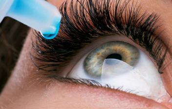Pterigión en el ojo: ojo de mujer echándose un colirio