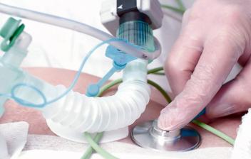 ¿Cómo se realiza una traqueotomía y para qué es necesaria?: Realización de traqueotomía