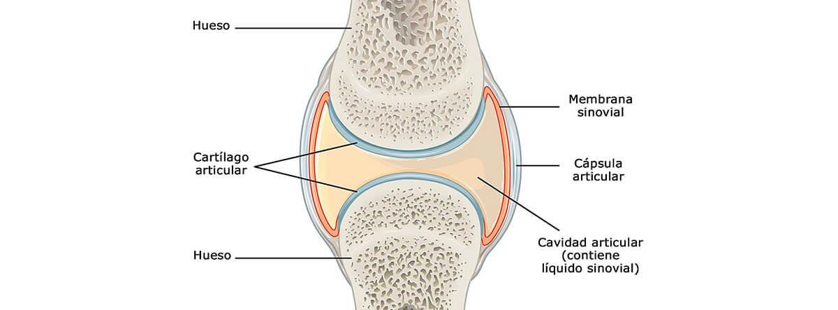 capsulitis articular de los dedos