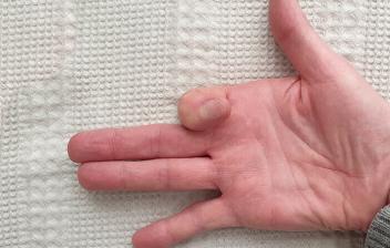 Capsulitis o inflamaciones de las articulaciones de los dedos: mano con el dedo índice cerrado