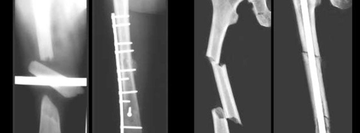 Osteosíntesis: fractura de humero