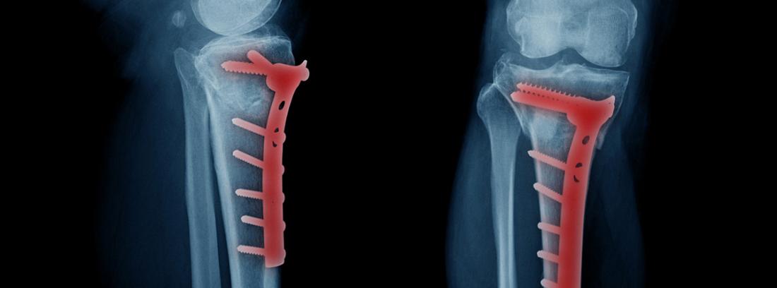 Osteosíntesis: radiografía de fractura