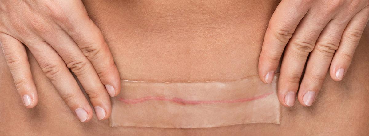 Cómo tratar las cicatrices: gasa puesta en una cicatriz del vientre
