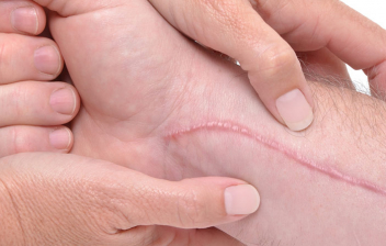 ¿Cómo cuidar las cicatrices? cicatriz en un brazo