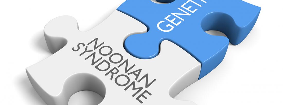 Síndrome de Noonan: piezas de puzzle blanca y azul escritas