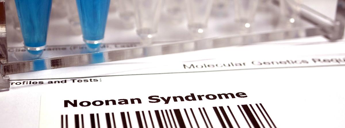 Síndrome de Noonan: código de barras en laboratorio del síndrome de Noonan