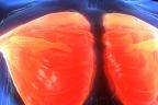 Síndrome de Poland, radiografía de pectorales