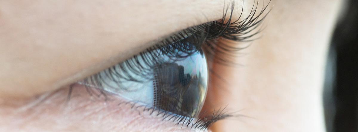 Síndrome de ojo de gato: ojo abierto gris