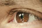 Síndrome de ojo de gato: ojo marrón con una mancha vertical en el iris